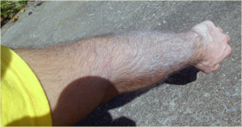 sunscreen in arm hair