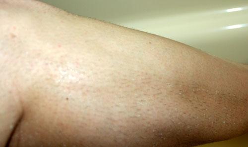 day away shaven leg