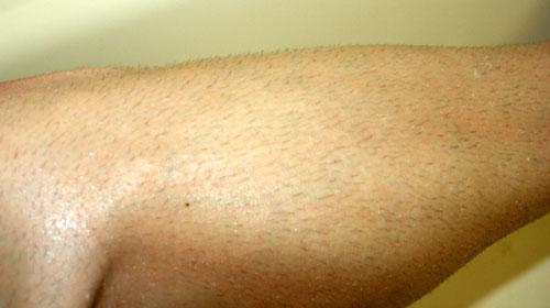 day away spread on leg