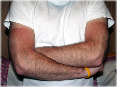 sunburn arms
